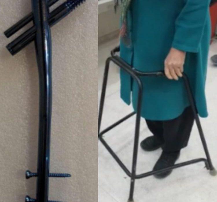 انجام اولین عمل جراحی گاما نیل(فیکس کردن شکستگی های سخت در تنه و پروگزیمال ران)  در بیمارستان داراب